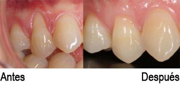 Antés y después cirugía gingival