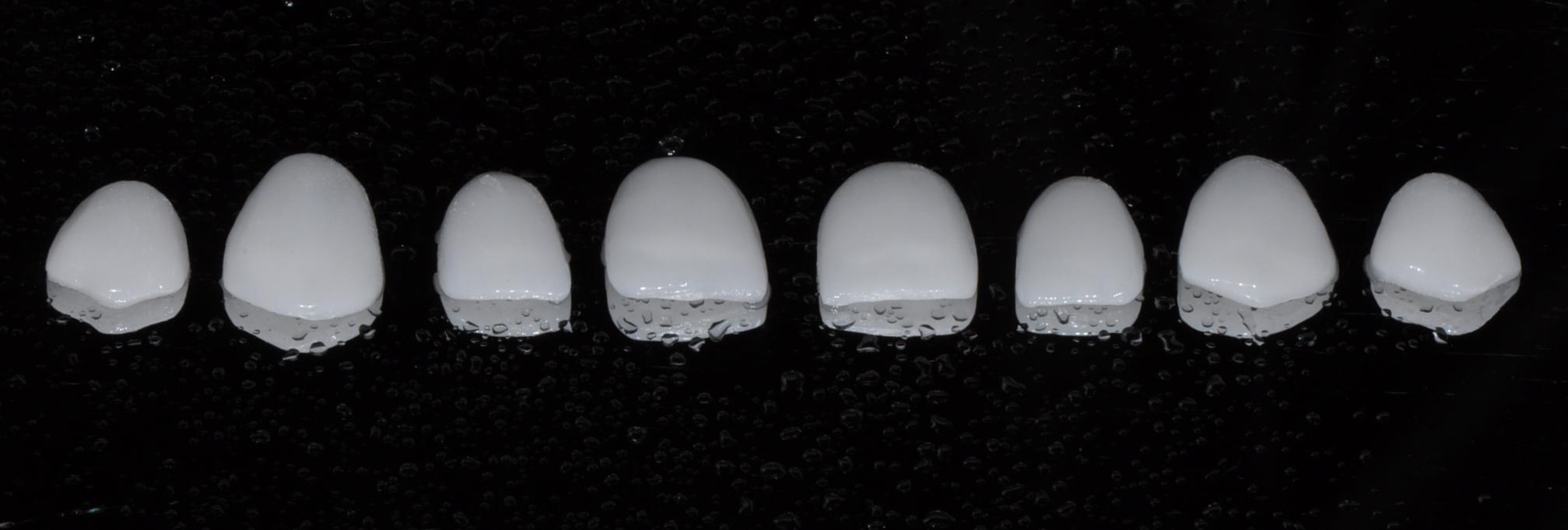 carillas-de-porcelana-2