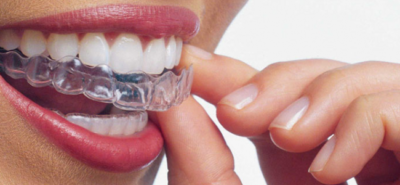Ortodoncia invisible en Almería