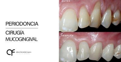 alberto periodoncia blog