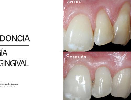 Periodoncia y Cirugía Mucogingival