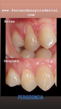 periodoncia alberto