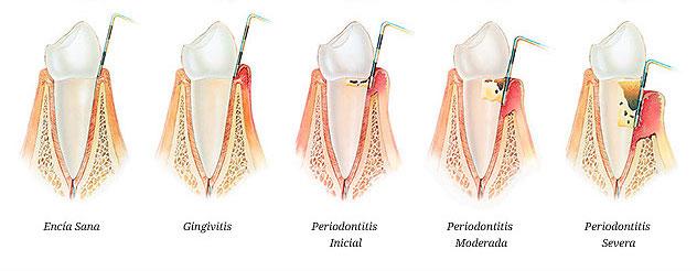 periodoncia alberto ejemplo