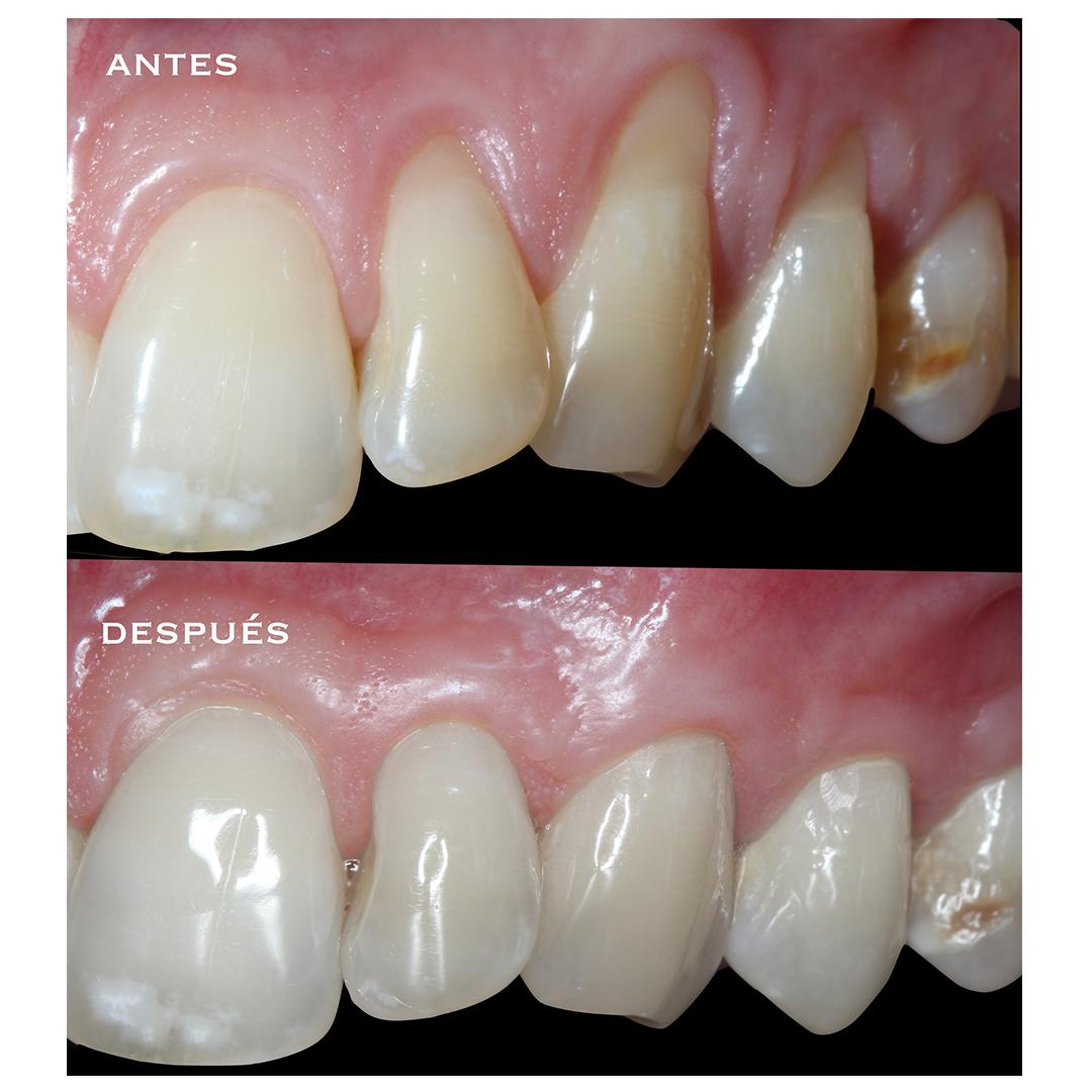 periodoncia antes despues alberto dentista