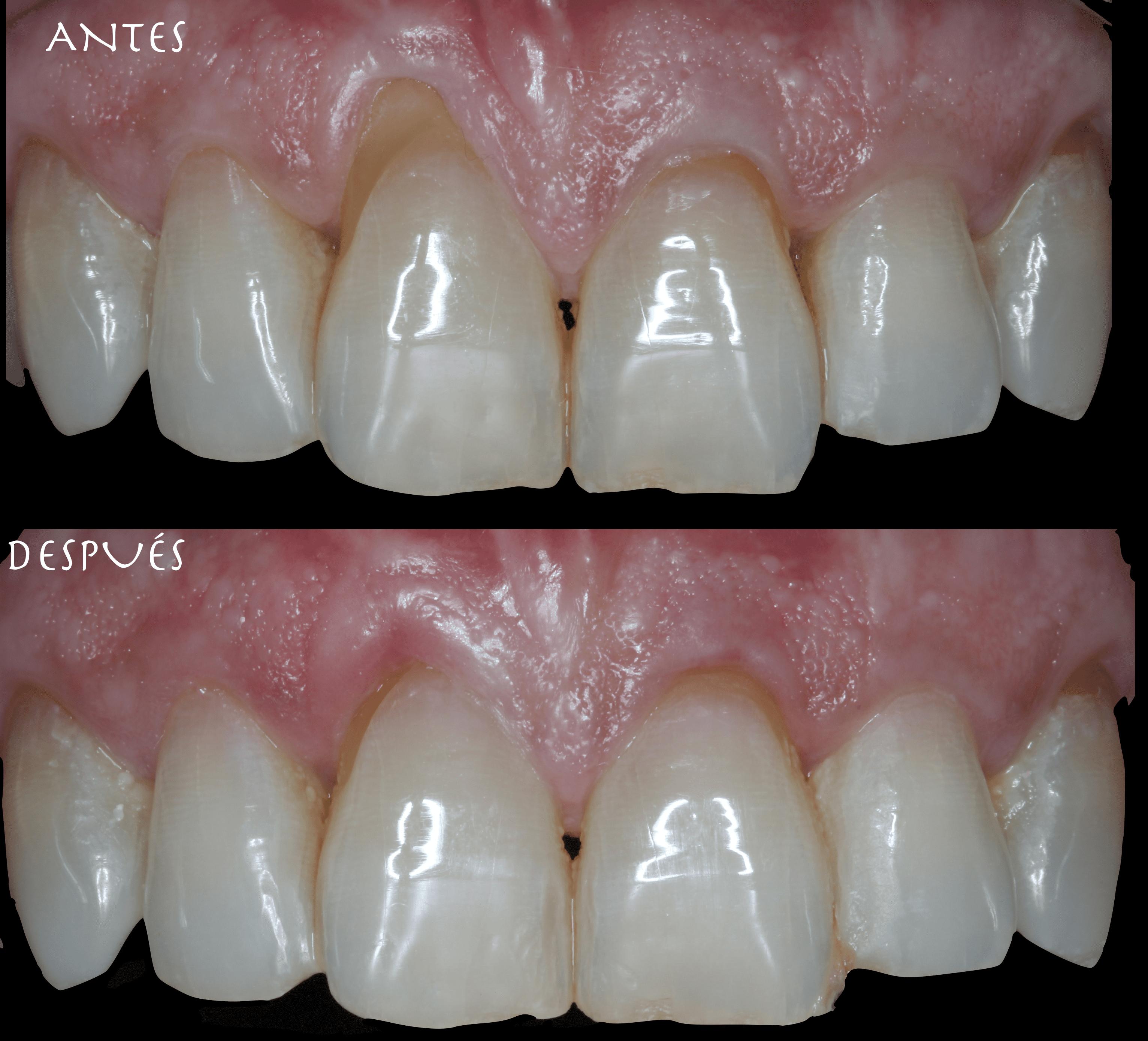 periodoncia antes despues alberto