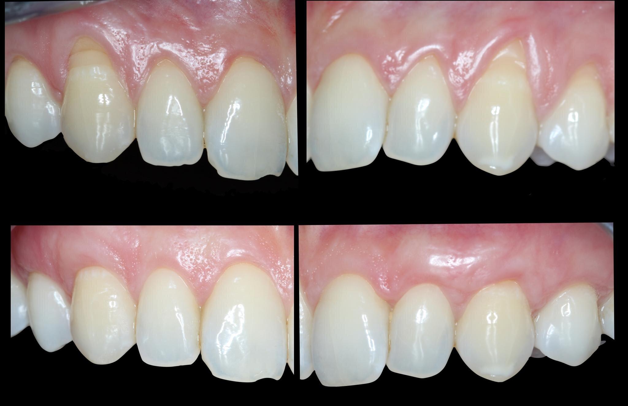 periodoncia antes despues ayora