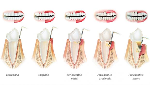 periodoncia paciente ejemplo