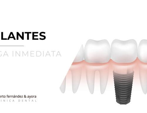 Implantes inmediatos | Ventajas