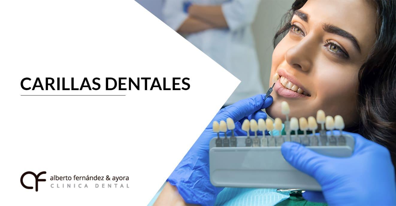 carillas dentales almeria clinica dental